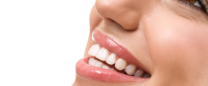 Professional Teeth Whitening in Arlington